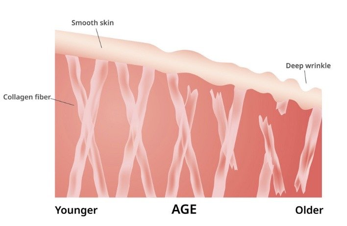 a graph showing the breakdown of the skin collagen